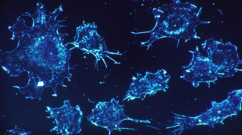 Individuati all'Università di Bologna composti chimici che possono uccidere cellule tumorali